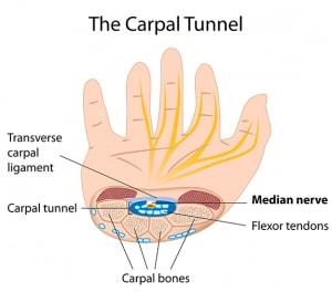 Carpal Tunnel Advanced Orthopaedic Centers