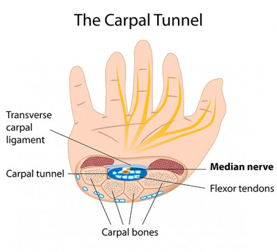 Carpal Tunnel Advanced Orthopaedic Centers