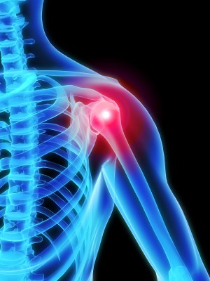 Shoulder Advanced Orthopaedic Centers