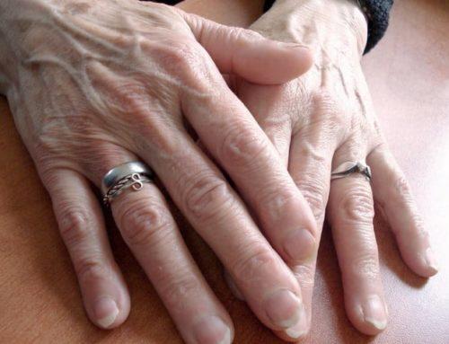 Understanding Arthritis of the Hand