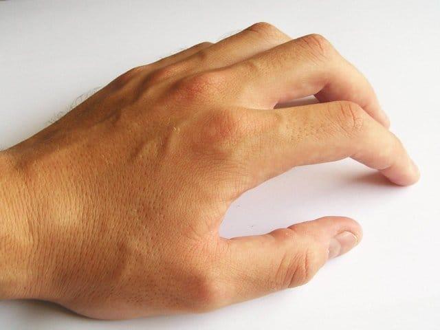 Hand Advanced Orthopaedic Centers