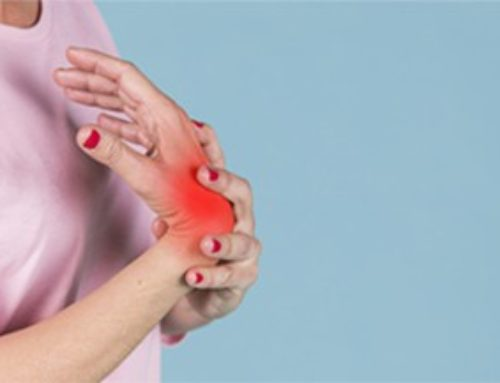 What Can You Do to Prevent Arthritis?